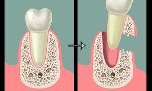 Плюсы и минусы имплантации без костной пластики