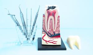 Зуб болит после удаления нерва: причины, симптомы, последствия