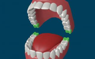 Зуб мудрости: симптомы его прорезывания