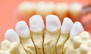 Остеомиелит челюсти: лечение, препараты, народные средства