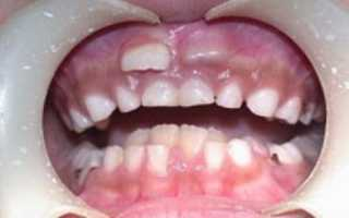 Какие проблемы создают акульи зубы человеку, и как исправить ситуацию